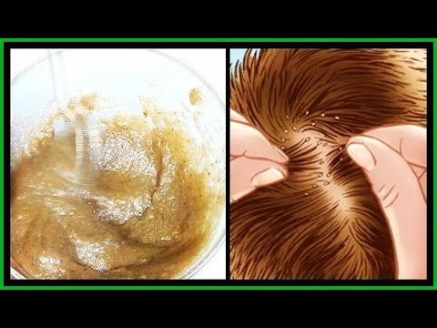 THE BEST TREATMENT FOR GETTING RID OF HEAD LICE | HOW TO GET RID OF HEAD LICE FAST | Khichi Beauty