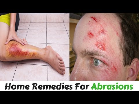 Abrasion Treatment with Natural Home Remedy | Skin Abrasion Treatment Natural herbal