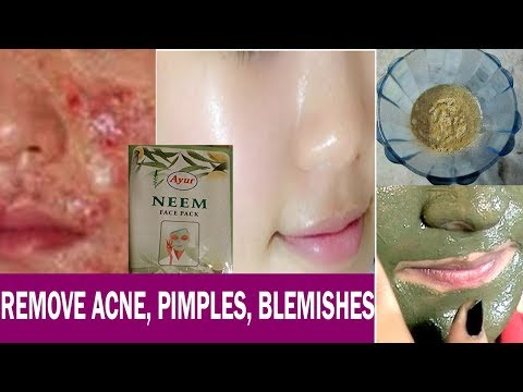 How to Remove Acne (PIMPLES), Dark Spots, Blemishes with Ayur Neem Face Mask PERMANENTLY!!