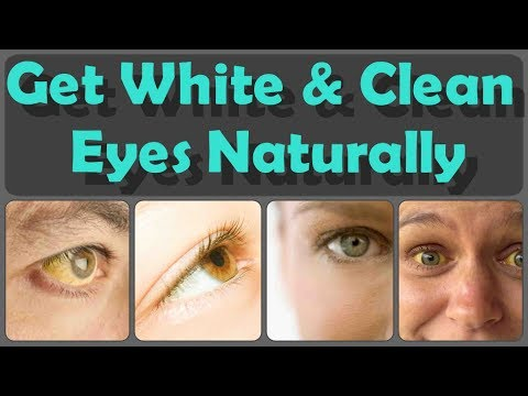 How To Get Clean Eyes Top 10 Methods For Whitening Of Eyes And 10 Foods For Yellow Eyes