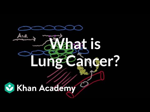 What is lung cancer?   Respiratory system diseases   NCLEX-RN   Khan Academy