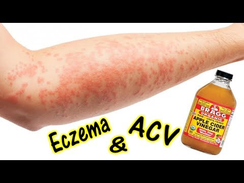 How To Treat Eczema with Apple Cider Vinegar