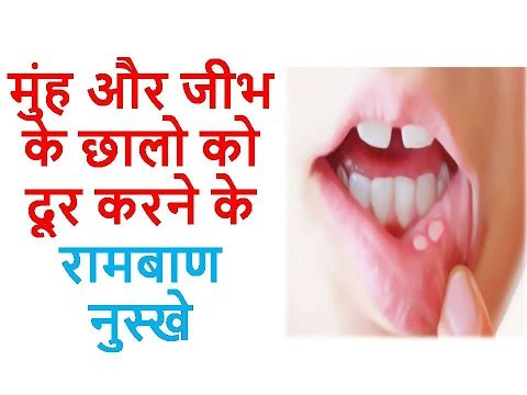 Some Superb Home Remedies To Get Rid Of Mouth And Tongue Ulcers