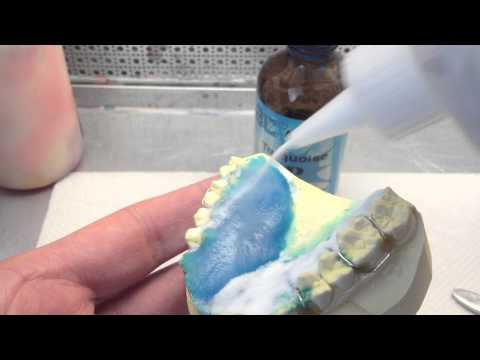 Acrylic Application on a Retainer- Salt and Pepper Method