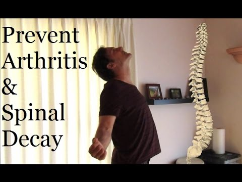 Prevent Arthritis & Spinal Decay: 3 Simple Movements!