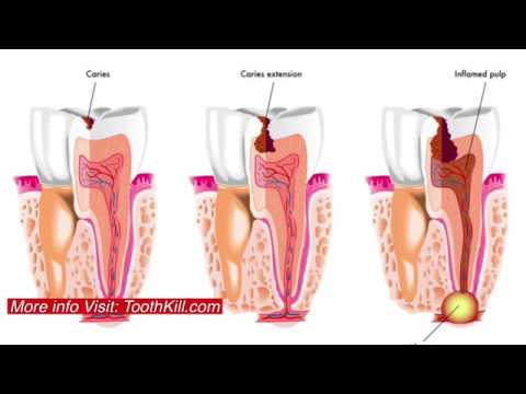 Abscessed Tooth Pain | Education And How To Stop Infection