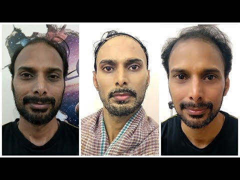 Fairness Beauty tips for Men, पुरुषों की त्वचा को गोरा करने और दाग धब्बे हटाने के सबसे असरदार नुस्खे