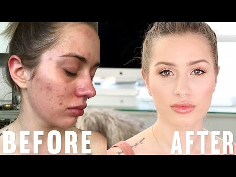 My 'Go To' Makeup for ACNE FLARE UPS