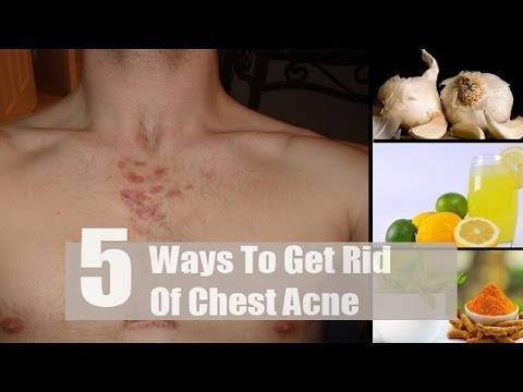 5 Home Remedies to Get Rid of Chest Acne.