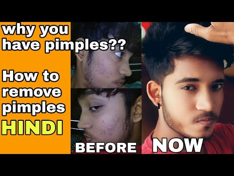 How To Remove Pimple | Hindi | Why You are Having Pimple | How To Remove Pimple In 14 days Naturally