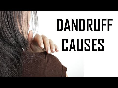 11 Big Causes Of Dandruff
