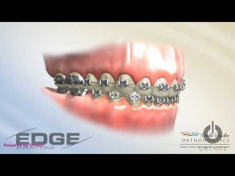 Decalcification - Due to poor hygiene with braces white spots