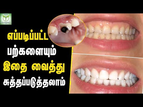 How to Get rid of Tooth Cavity at Home - Teeth care Tips In Tamil || Tamil Health & Beauty Tips