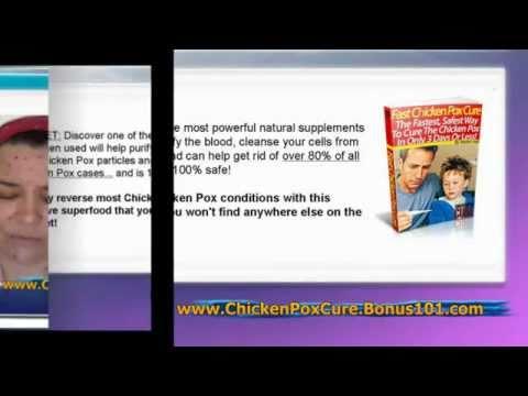 chicken pox in babies - shingles chicken pox - chicken pox scar removal