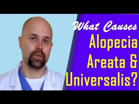 What Causes Alopecia Areata and Universalis?
