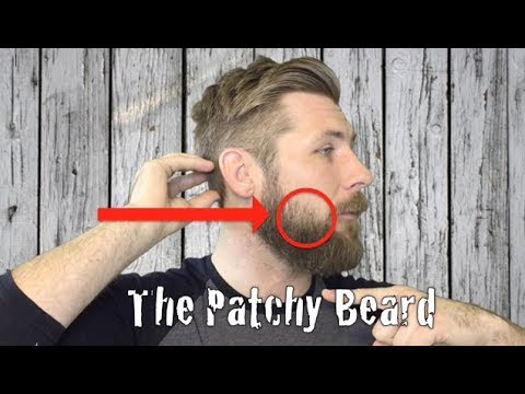 The Patchy Beard
