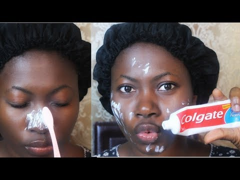 OMG!!!  I APPLIED TOOTHPASTE ON MY SKIN AND SEE WHAT HAPPENED