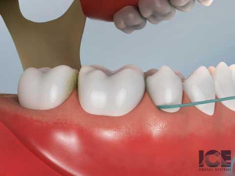 Flossing Lower Teeth