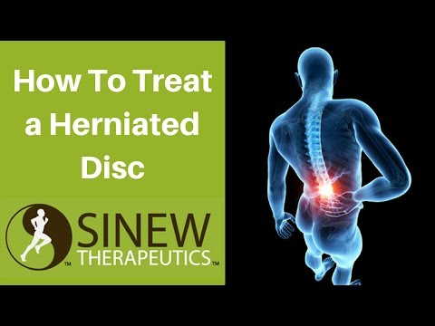 How To Treat a Herniated Disc and Speed Recovery