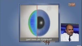 الكاستم ليزك او الفيمتو ليزك مع بصمة العين Custom lasik   دكتور أشرف سليمان