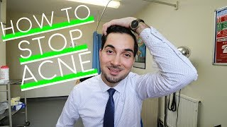 How To Get Rid Of Acne | Best Spot Treatment | How To Use Benzoyl Peroxide | Prevent Acne (2018)