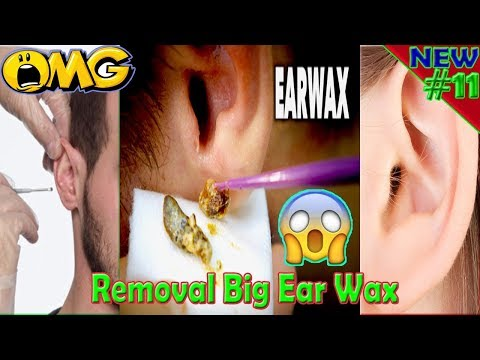 #11, removal,ear wax removal,ear wax extraction,ears,ear cleaning,earwax 2017,ear pain,health