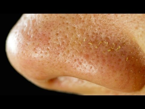 There Are Tiny Mites Living On Your Face