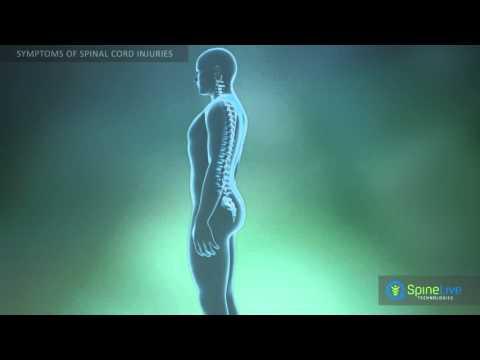 Spinal cord injury. Symptoms
