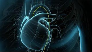 Coronary Angioplasty Surgery | Balloon Angioplasty | Nucleus Health