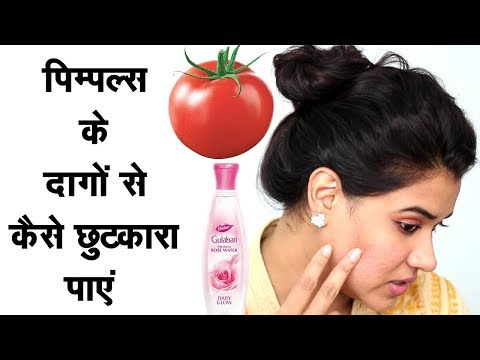 How to Get Rid of Pimple Scars Naturally (Hindi)