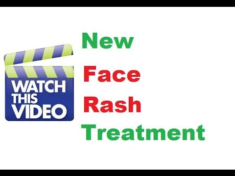 How To Get Rid of Face Rash At Home