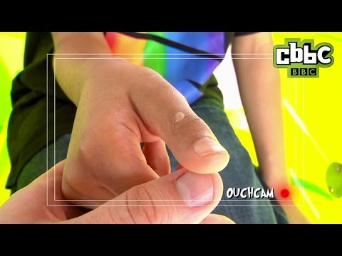 How to treat warts on Operation Ouch! - CBBC