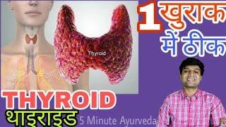 THYROID, थाइराइड 1 खुराक में ठीक   Cause, Symptoms, Home Remedy   Fully Explained 100% Working