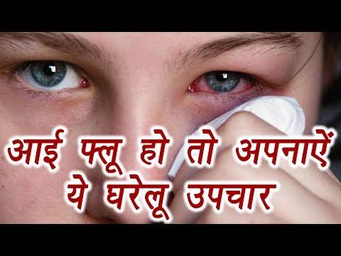 Conjunctivitis, Eye flu  आंख आने पर घरेलू उपचार   Home Remedies   Boldsky