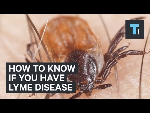 How to know if you have Lyme disease