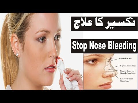 how to stop nose bleeding home remedies what causes nose bleed nakseer ka ilaj by vocal of amir
