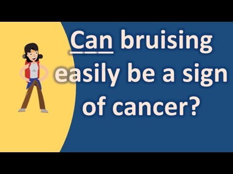 Can bruising easily be a sign of cancer ? |Find Health Questions