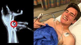 how TechSmartt SHATTERED his hand