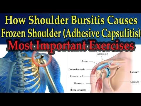 How Shoulder Bursitis Causes Frozen Shoulder (MOST IMPORTANT EXERCISES) - Dr Mandell