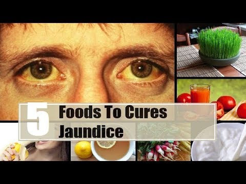 5 Ways to Cure Jaundice Fast.