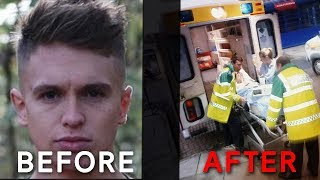 Joe Weller Before And After The KSI Fight