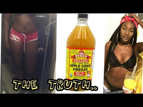 Apple Cider Vinegar Weight Loss| 30 Days| No exercise| Before & After Pictures