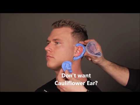 Don't want Cauliflower Ear? Cauliflower Ear Prevention in 5 minutes at home
