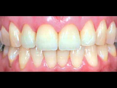 Healthy gums pictures | How to get healthy gums http://healthygumsandteeth.net