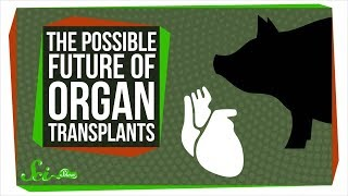 Bioprinting and Pig Chimeras: The Possible Future of Organ Transplants