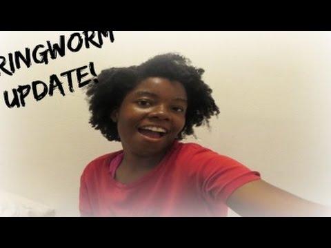 RINGWORM HAIR UPDATE!!!