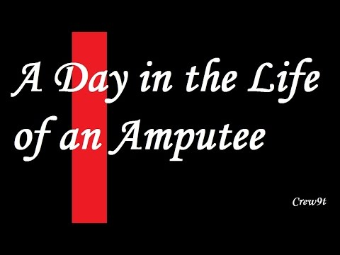 A Day in the Life of an Amputee