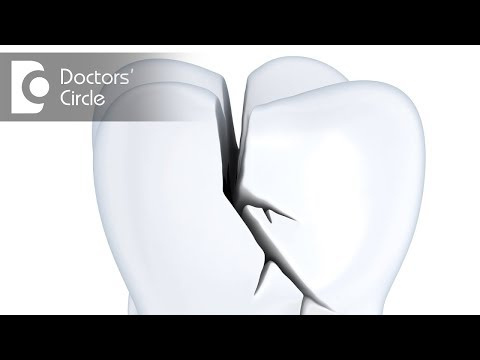 How to manage if Root Canal treated tooth gets fractured? - Dr. Jayaprakash Ittigi