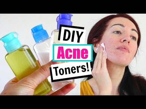 DIY Toner For Acne & Oily Skin! Home Remedies For Acne!