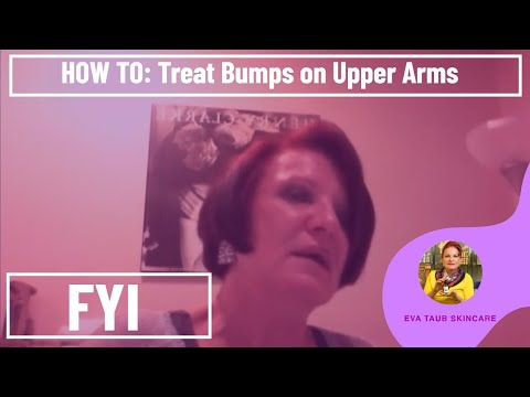 How to Treat Bumps on Upper Arms